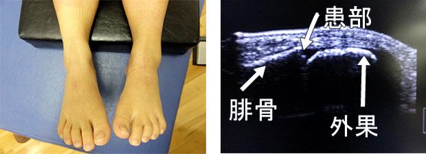 8歳♀左足関節(腓骨骨端線離開)