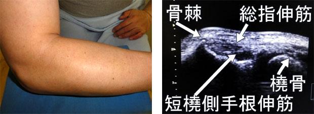 49歳♂右肘関節(上腕骨外側上顆炎)